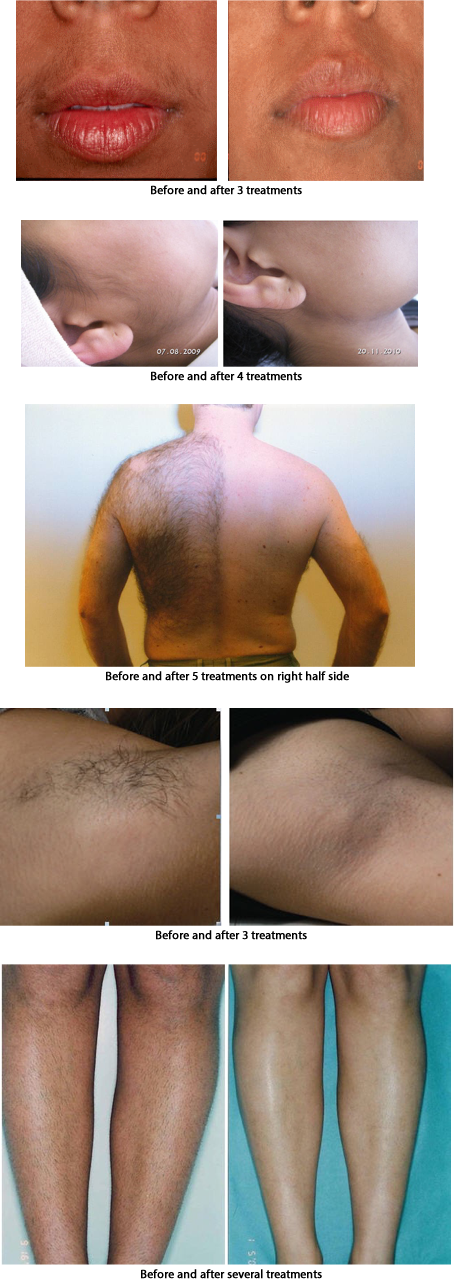 arms hair removal